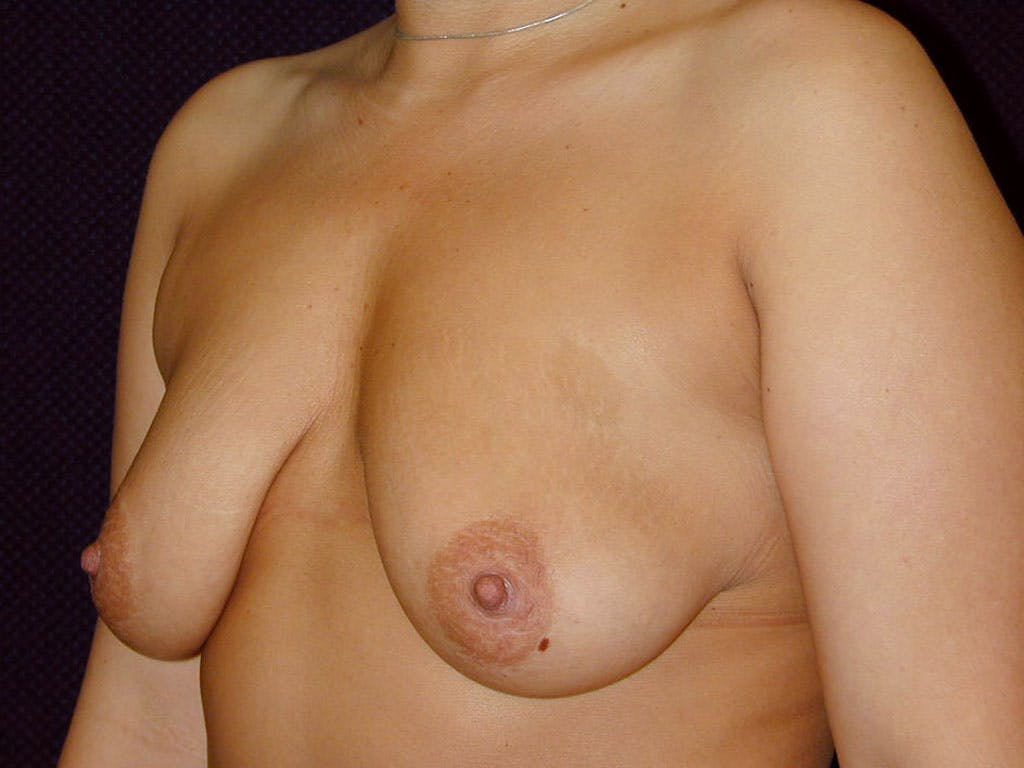 Vertical and Inverted T Breast Lift Gallery - Patient 39244190 - Image 5