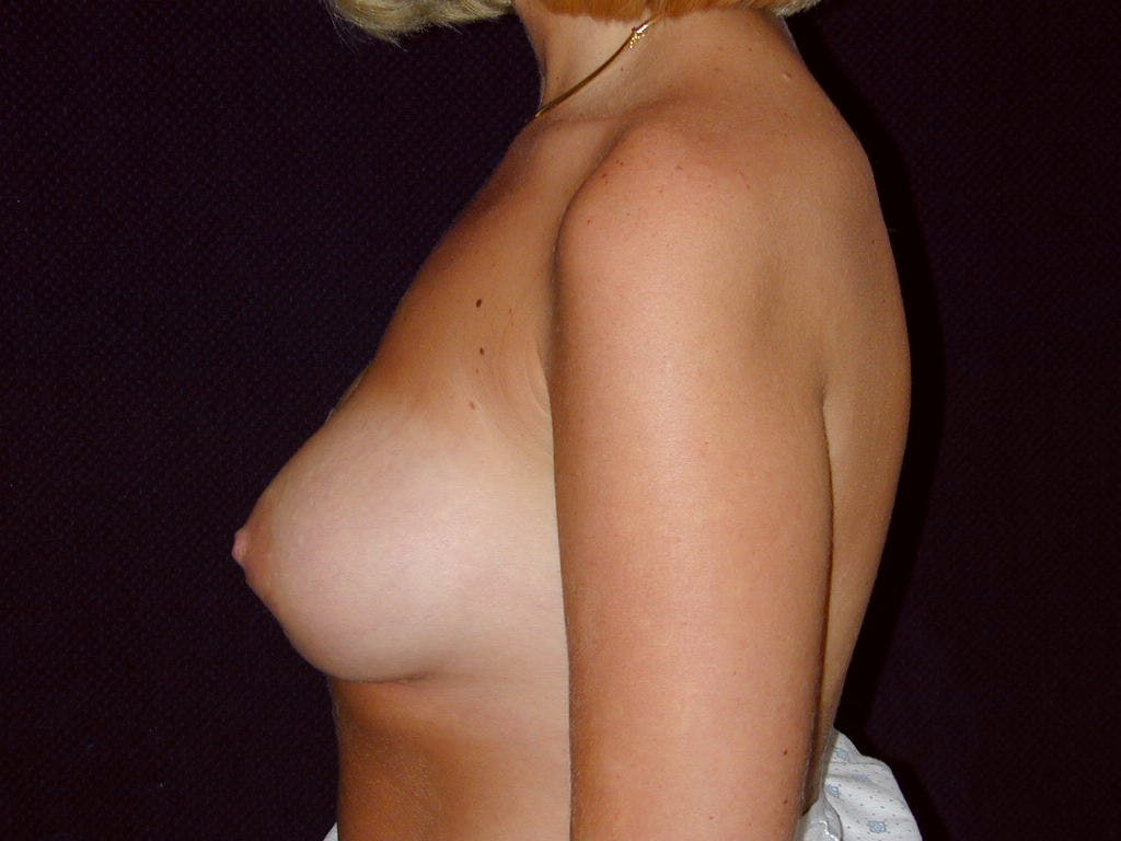 Breast Augmentation Gallery - Patient 39244188 - Image 10