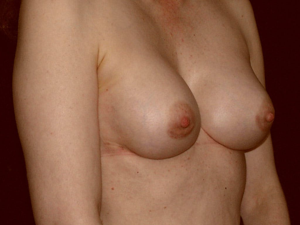 Revision Breast Surgery Gallery - Patient 39244192 - Image 4