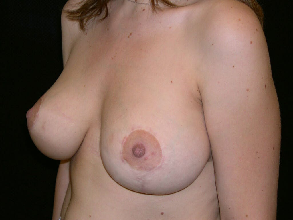 Vertical and Inverted T Breast Lift Gallery - Patient 39244190 - Image 6
