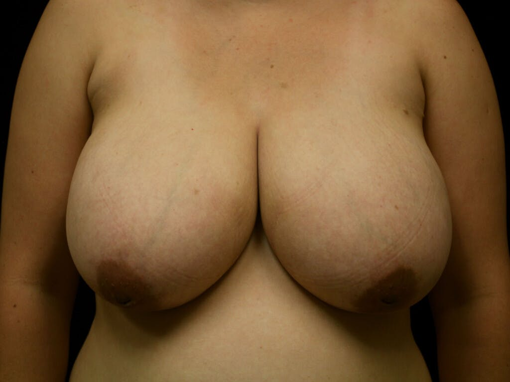 Breast Reduction T Incision Gallery - Patient 39244191 - Image 1