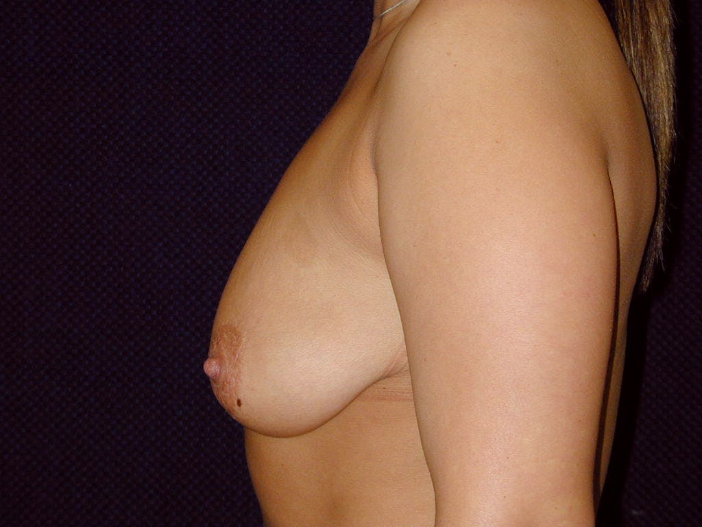 Vertical and Inverted T Breast Lift Gallery - Patient 39244190 - Image 7