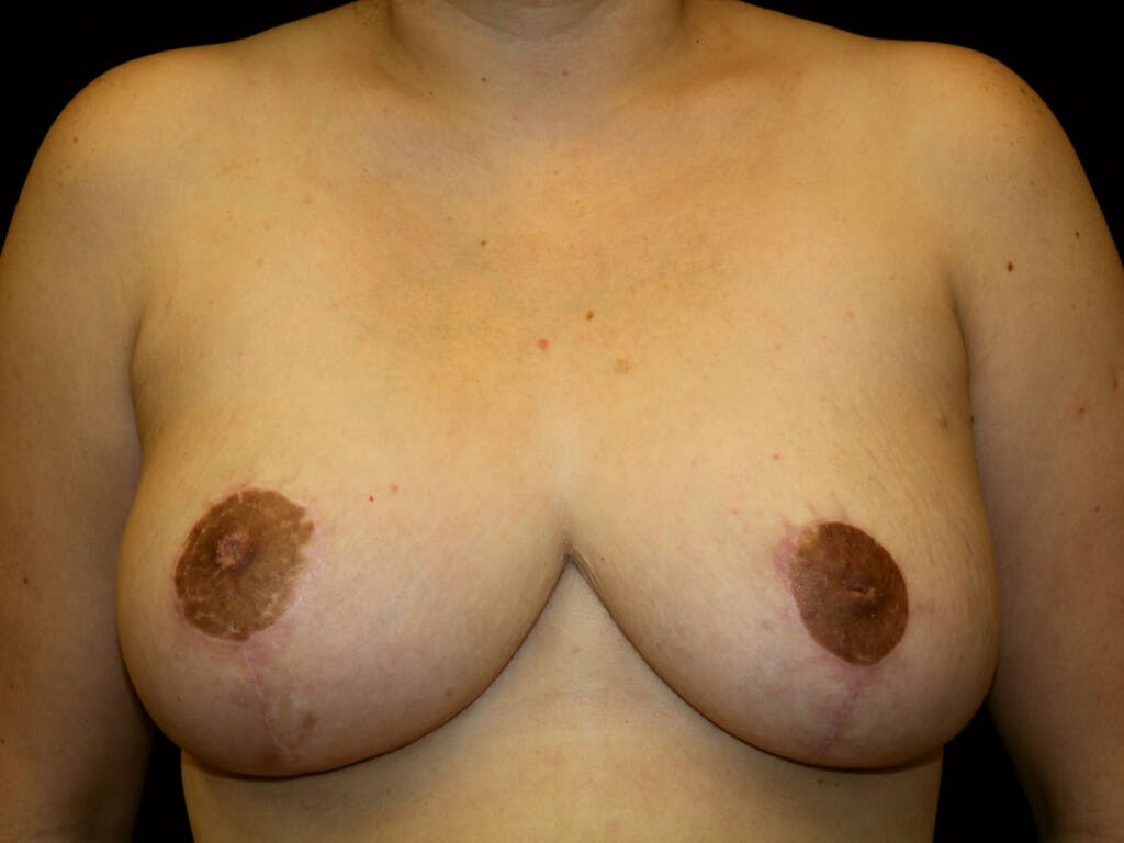 Breast Reduction T Incision Gallery - Patient 39244191 - Image 2