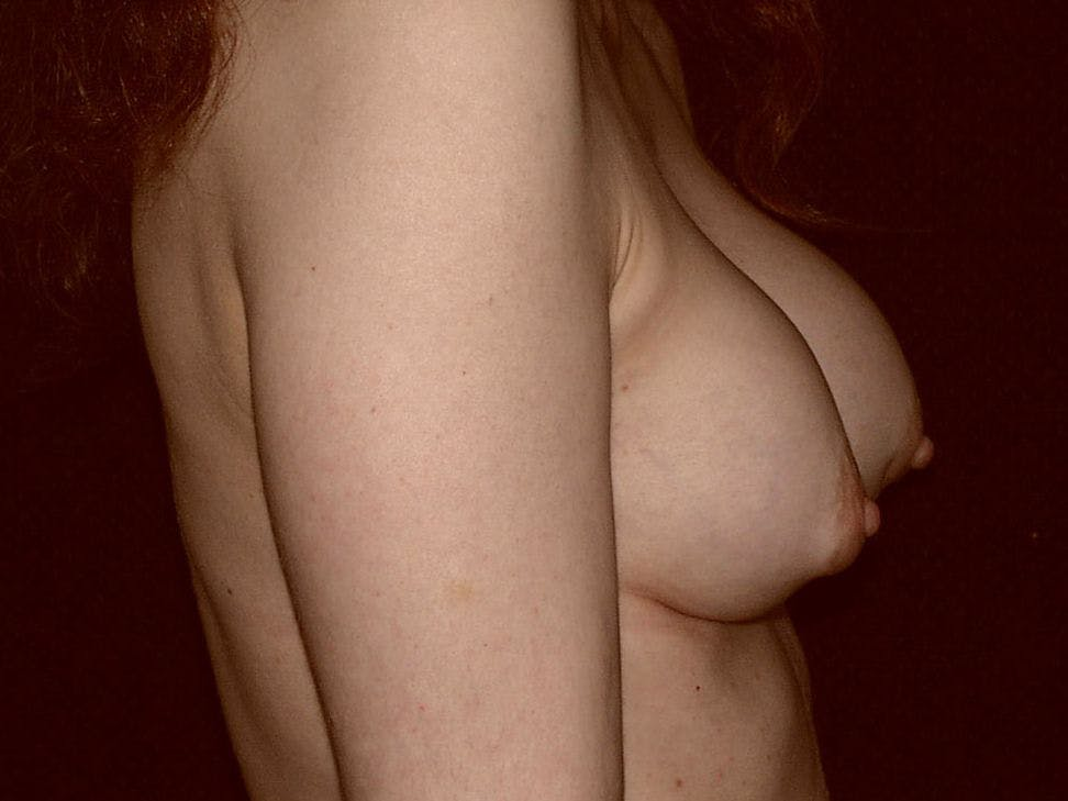 Revision Breast Surgery Gallery - Patient 39244192 - Image 5