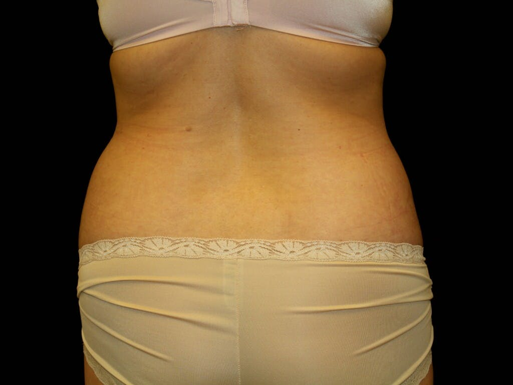 Tummy Tuck Gallery - Patient 39244189 - Image 11