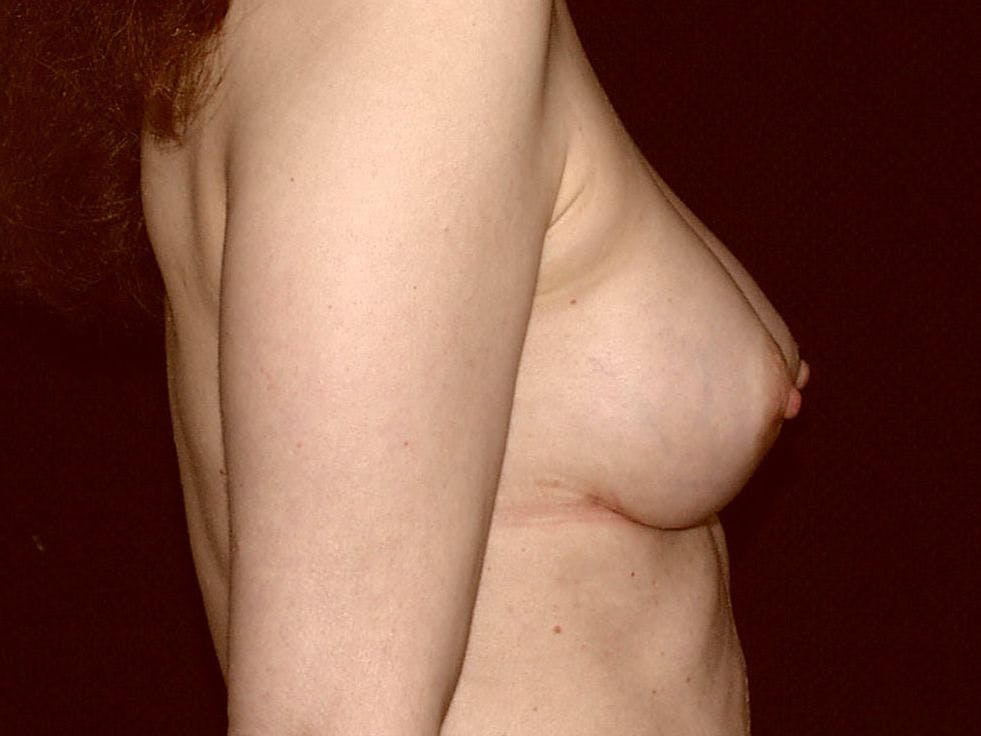 Revision Breast Surgery Gallery - Patient 39244192 - Image 6