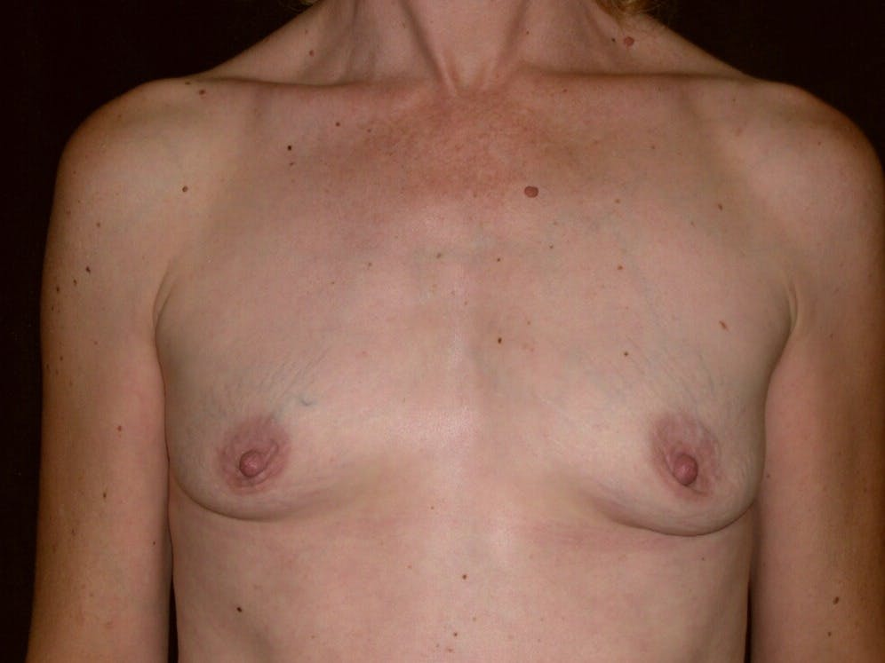 Breast Augmentation Gallery - Patient 39244193 - Image 1