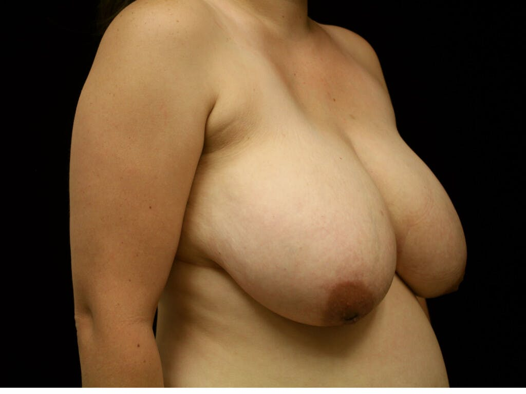 Breast Reduction T Incision Gallery - Patient 39244191 - Image 3