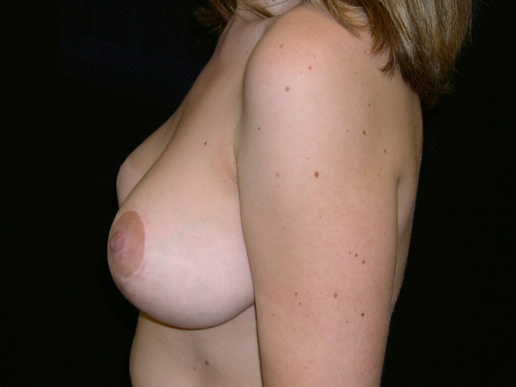 Vertical and Inverted T Breast Lift Gallery - Patient 39244190 - Image 8