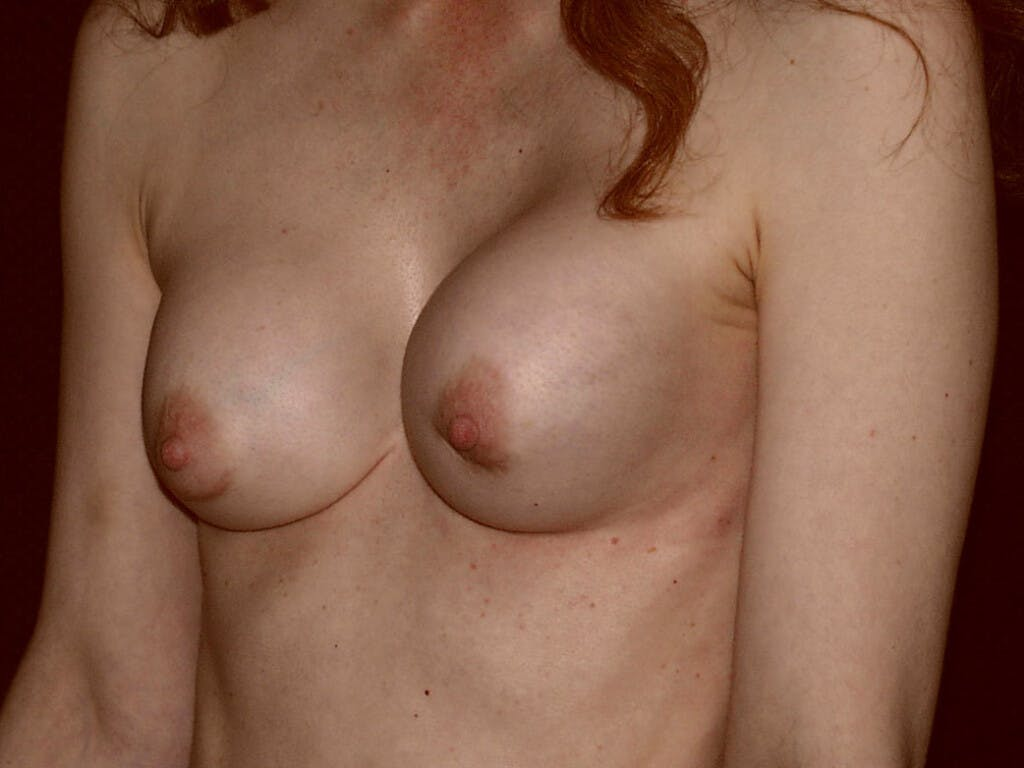 Revision Breast Surgery Gallery - Patient 39244192 - Image 7