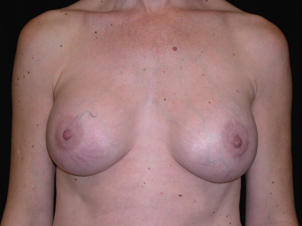 Breast Augmentation Gallery - Patient 39244193 - Image 2