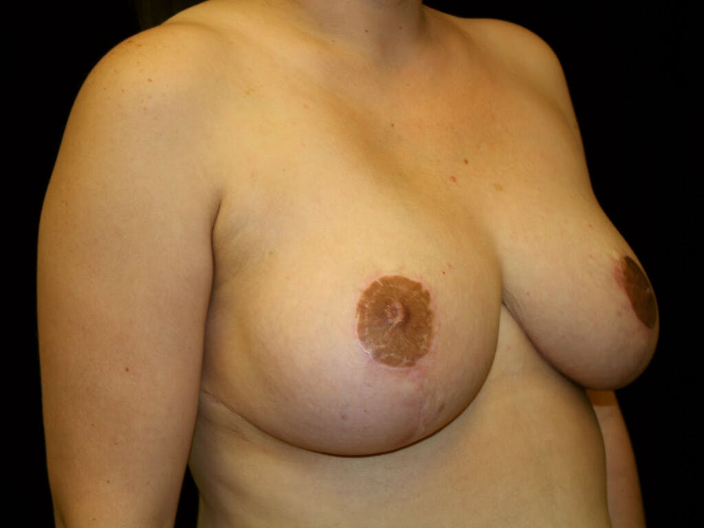 Breast Reduction T Incision Gallery - Patient 39244191 - Image 4
