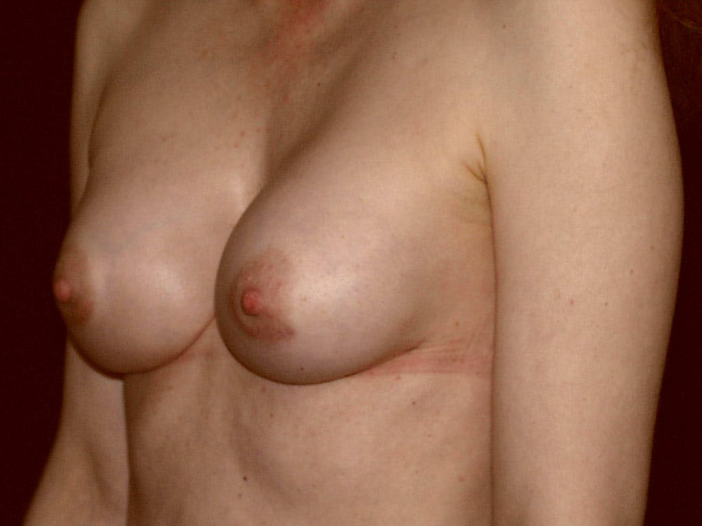 Revision Breast Surgery Gallery - Patient 39244192 - Image 8