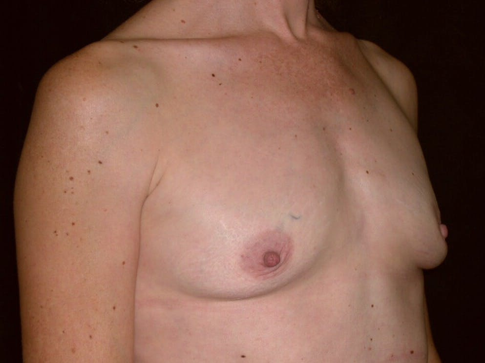 Breast Augmentation Gallery - Patient 39244193 - Image 3