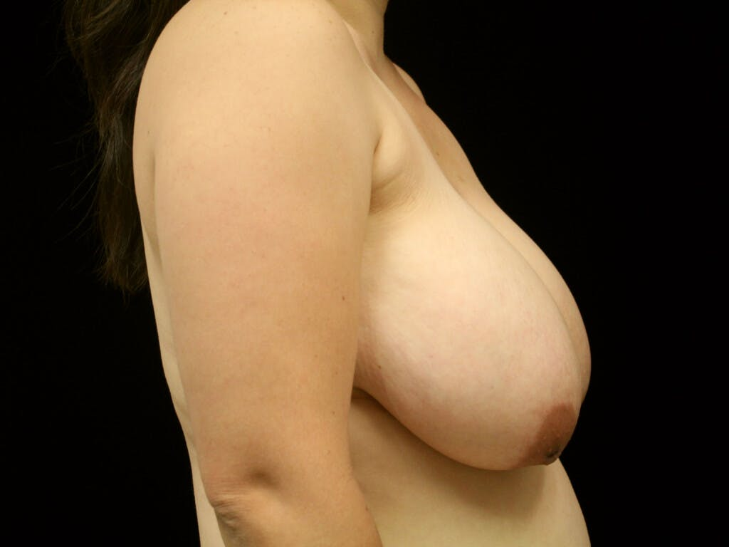 Breast Reduction T Incision Gallery - Patient 39244191 - Image 5