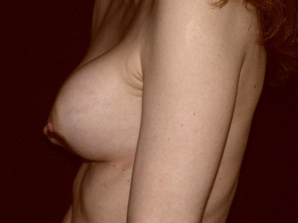 Revision Breast Surgery Gallery - Patient 39244192 - Image 9