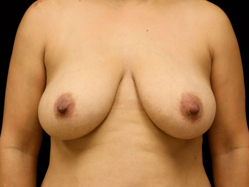 Vertical and Inverted T Breast Lift Gallery - Patient 39244195 - Image 1