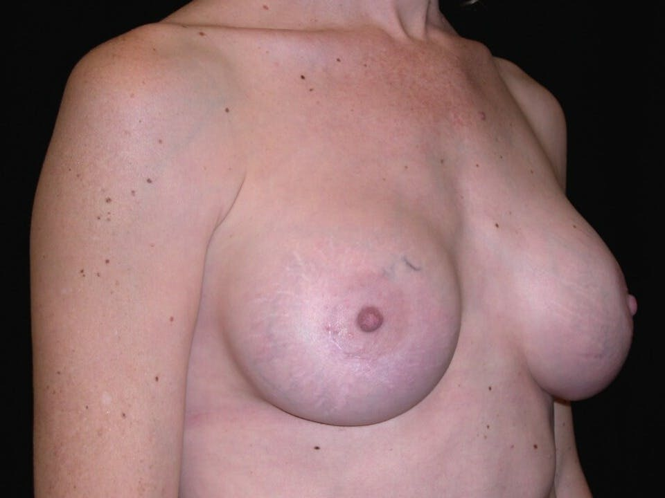 Breast Augmentation Gallery - Patient 39244193 - Image 4