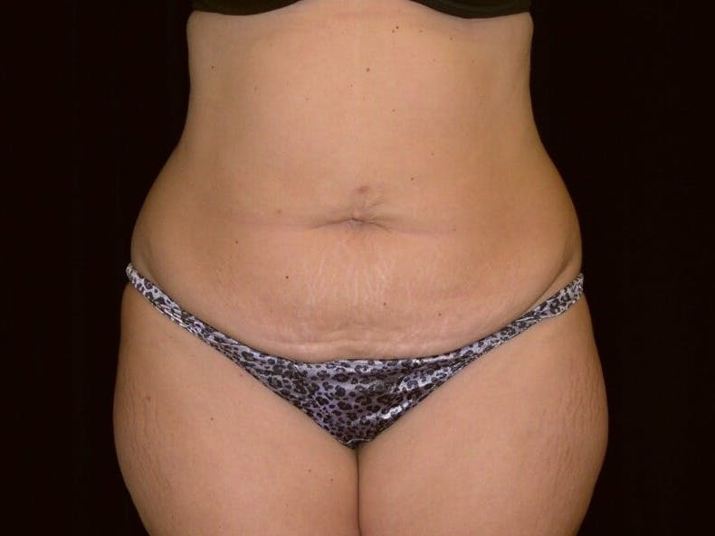 Tummy Tuck Gallery - Patient 39244196 - Image 1