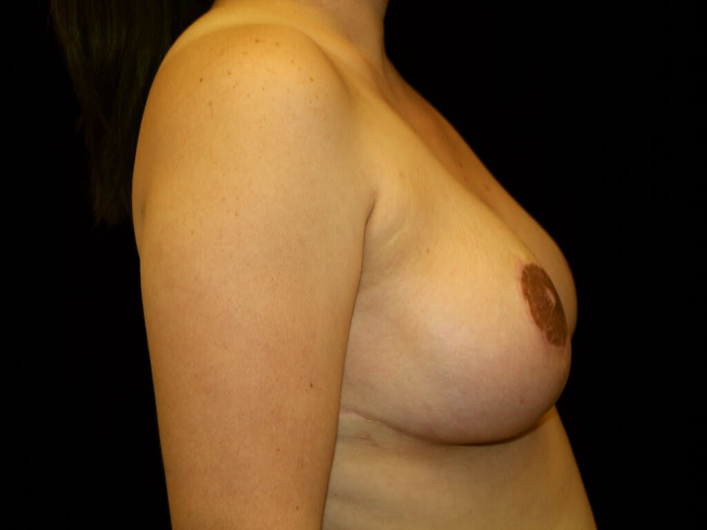 Breast Reduction T Incision Gallery - Patient 39244191 - Image 6