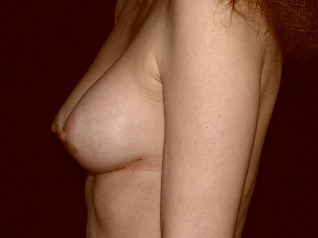 Revision Breast Surgery Gallery - Patient 39244192 - Image 10