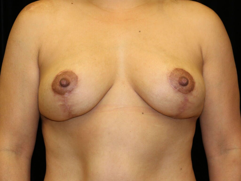 Vertical and Inverted T Breast Lift Gallery - Patient 39244195 - Image 2