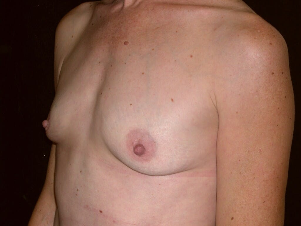 Breast Augmentation Gallery - Patient 39244193 - Image 5