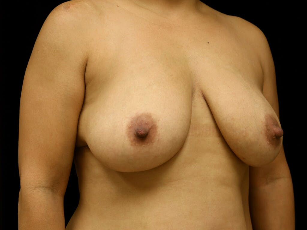 Vertical and Inverted T Breast Lift Gallery - Patient 39244195 - Image 3