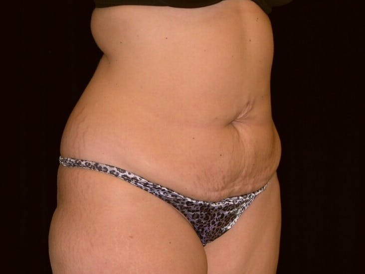 Tummy Tuck Gallery - Patient 39244196 - Image 3