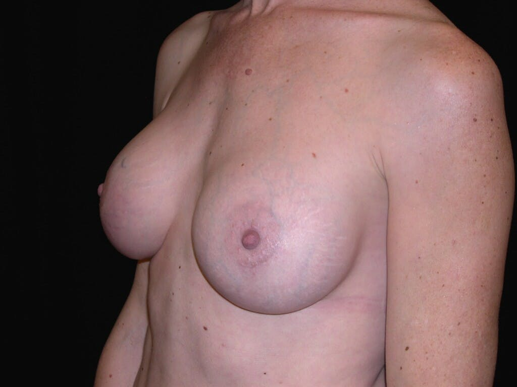Breast Augmentation Gallery - Patient 39244193 - Image 6