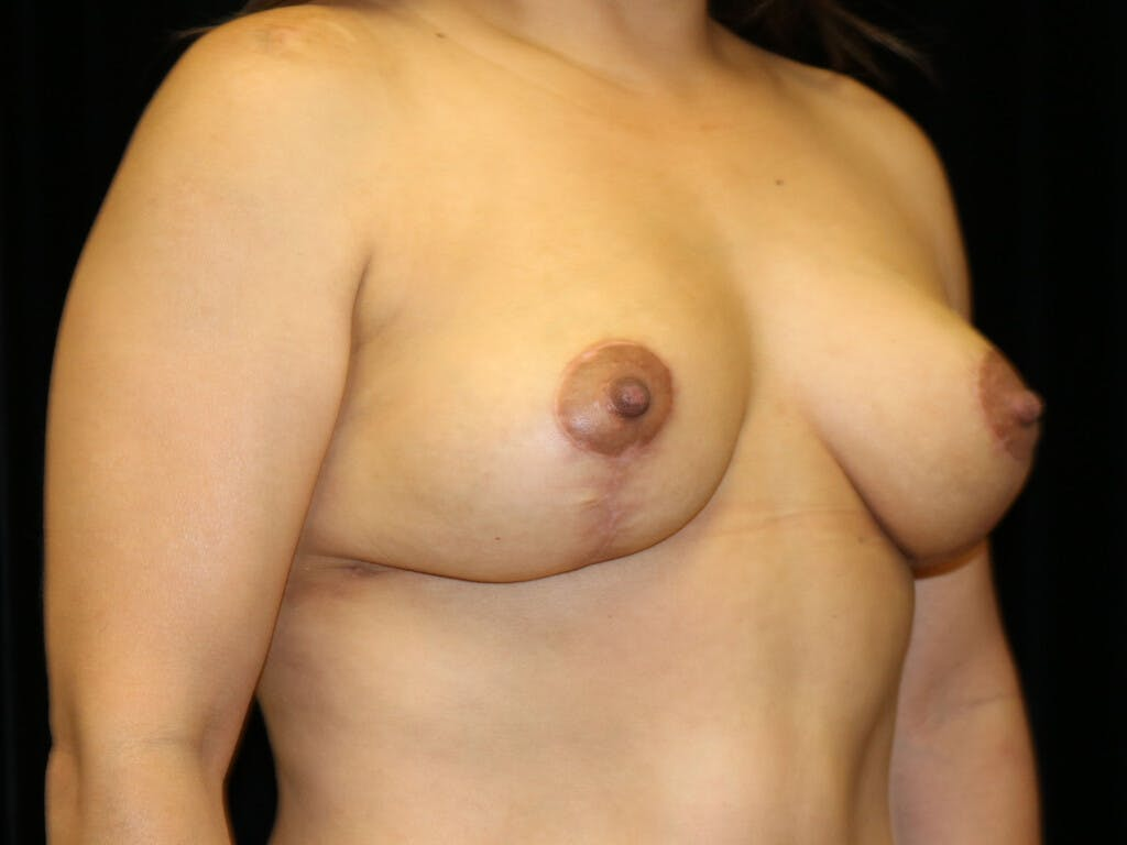 Vertical and Inverted T Breast Lift Gallery - Patient 39244195 - Image 4