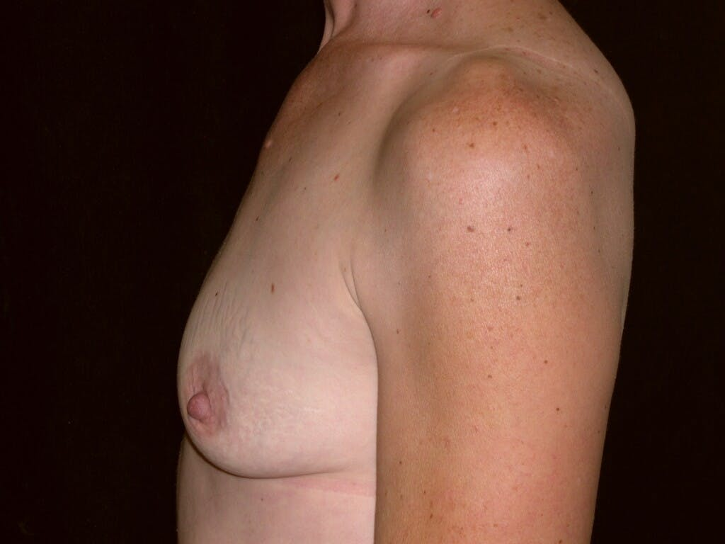 Breast Augmentation Gallery - Patient 39244193 - Image 7