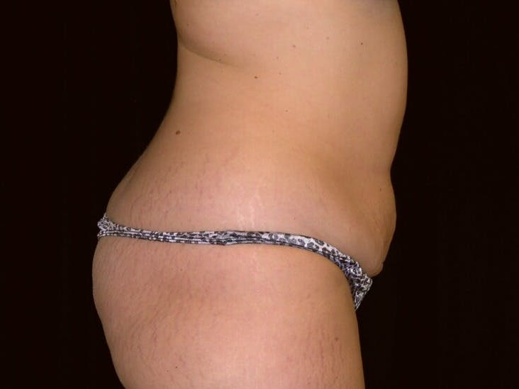 Tummy Tuck Gallery - Patient 39244196 - Image 5