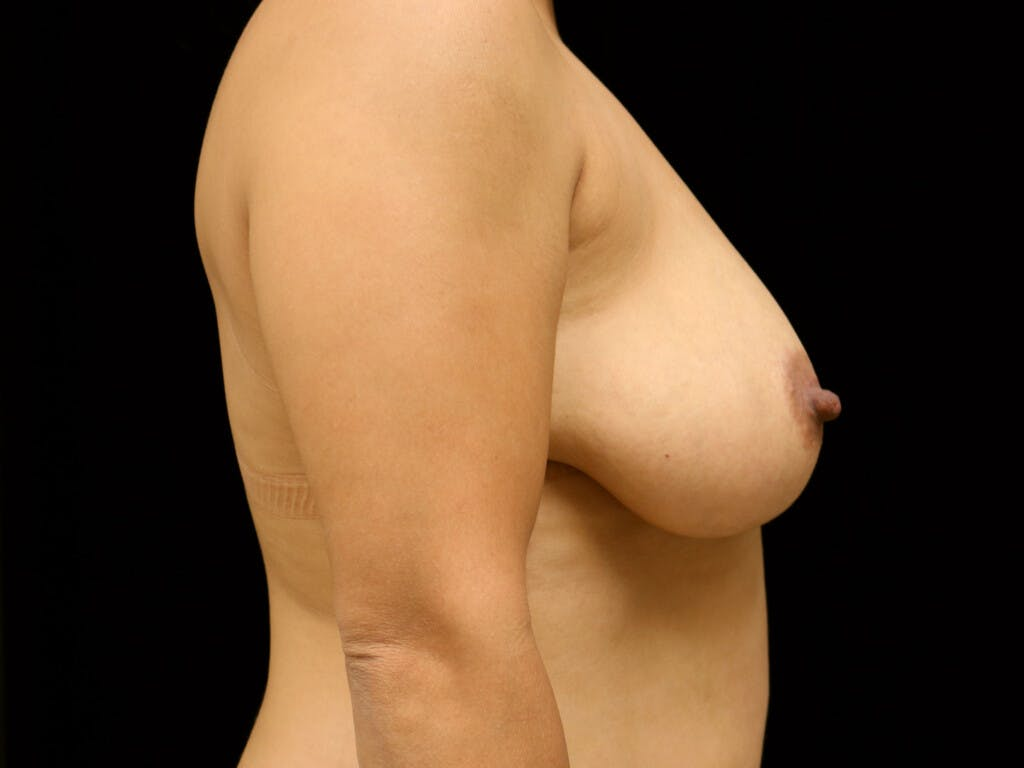 Vertical and Inverted T Breast Lift Gallery - Patient 39244195 - Image 5