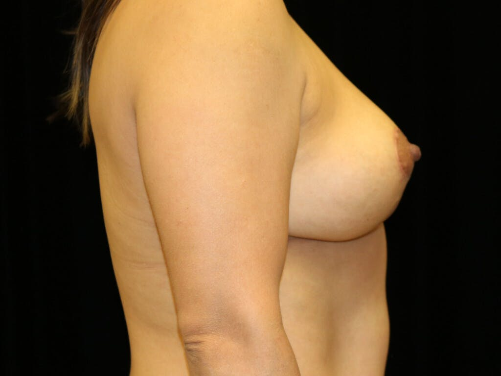 Vertical and Inverted T Breast Lift Gallery - Patient 39244195 - Image 6