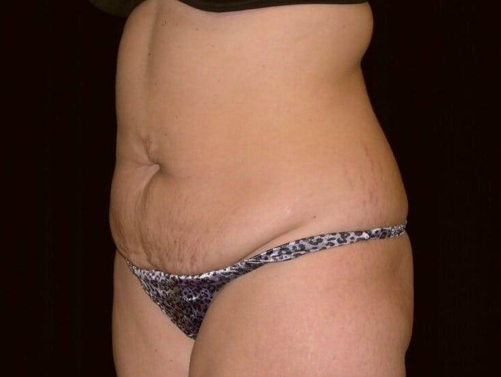 Tummy Tuck Gallery - Patient 39244196 - Image 7