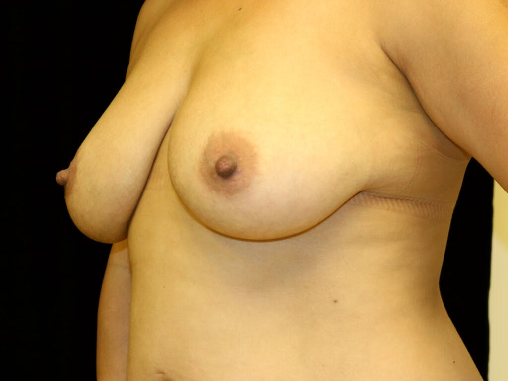 Vertical and Inverted T Breast Lift Gallery - Patient 39244195 - Image 7