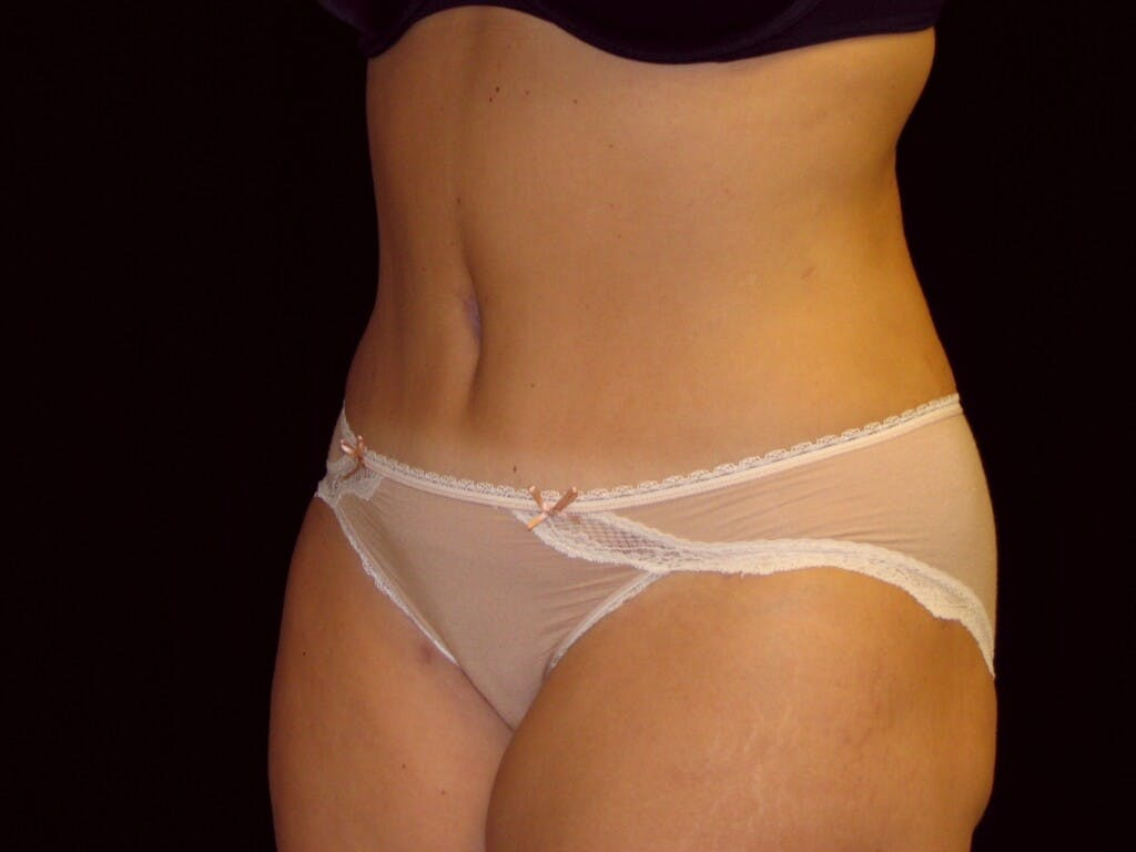 Tummy Tuck Gallery - Patient 39244196 - Image 8