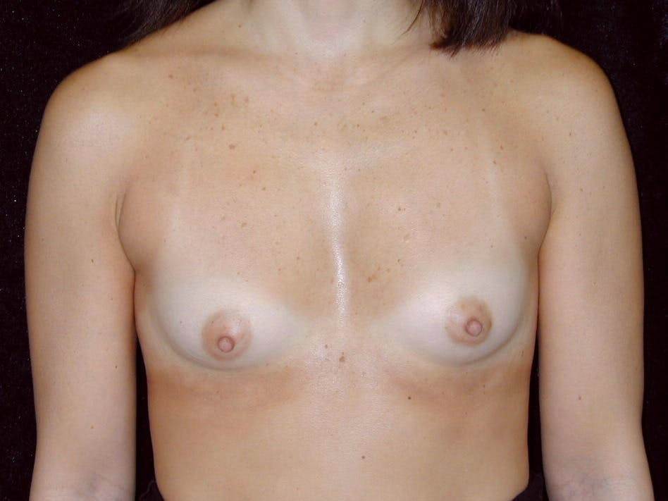 Breast Augmentation Gallery - Patient 39244198 - Image 1