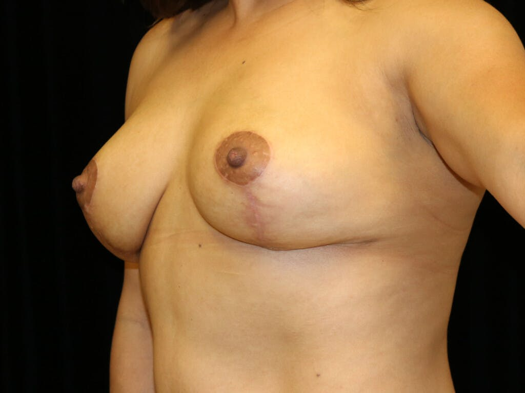 Vertical and Inverted T Breast Lift Gallery - Patient 39244195 - Image 8