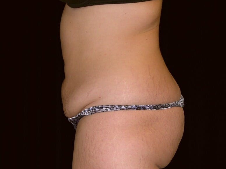 Tummy Tuck Gallery - Patient 39244196 - Image 9