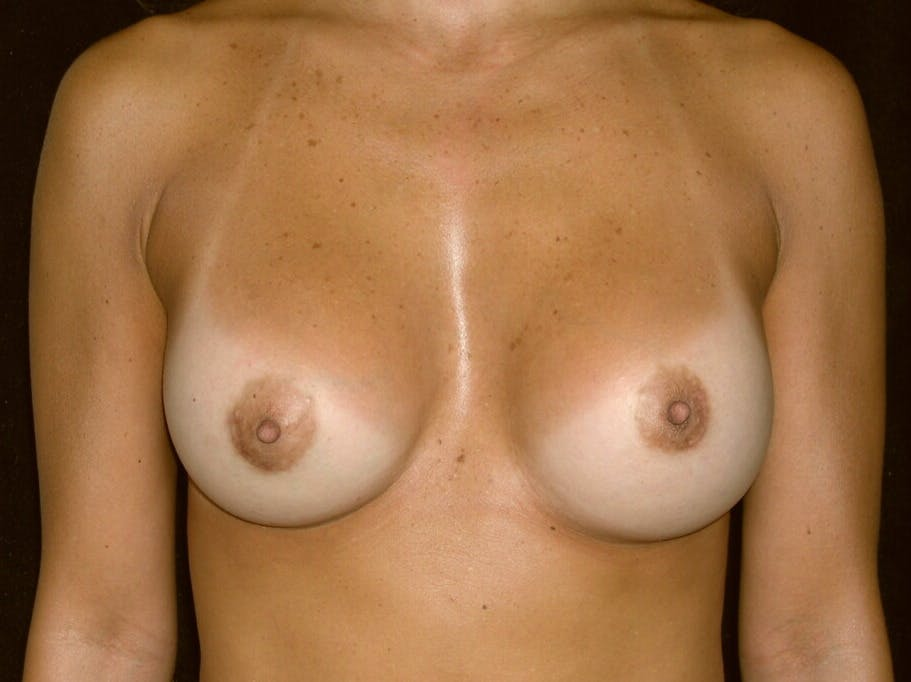 Breast Augmentation Gallery - Patient 39244198 - Image 2