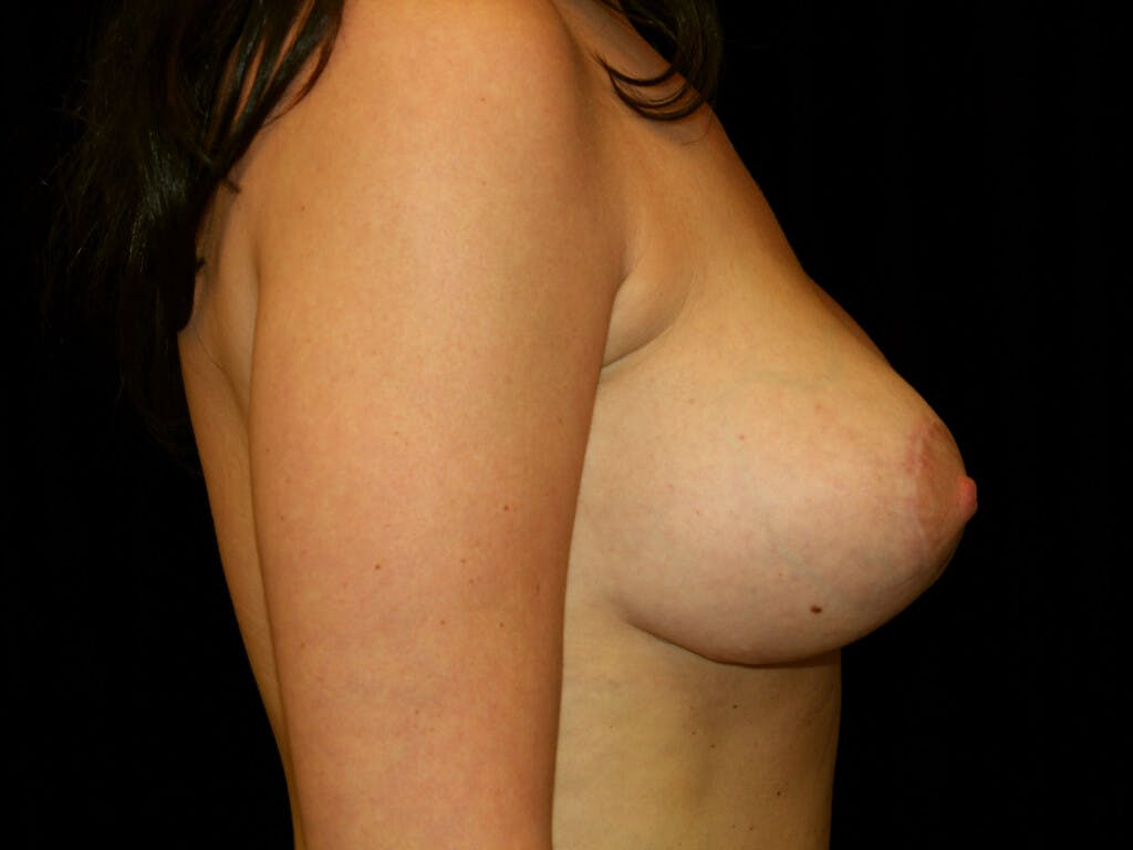 Revision Breast Surgery Gallery - Patient 39244197 - Image 6