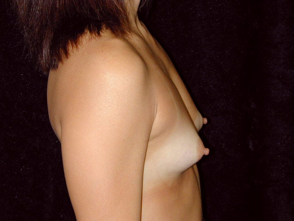 Breast Augmentation Gallery - Patient 39244198 - Image 3