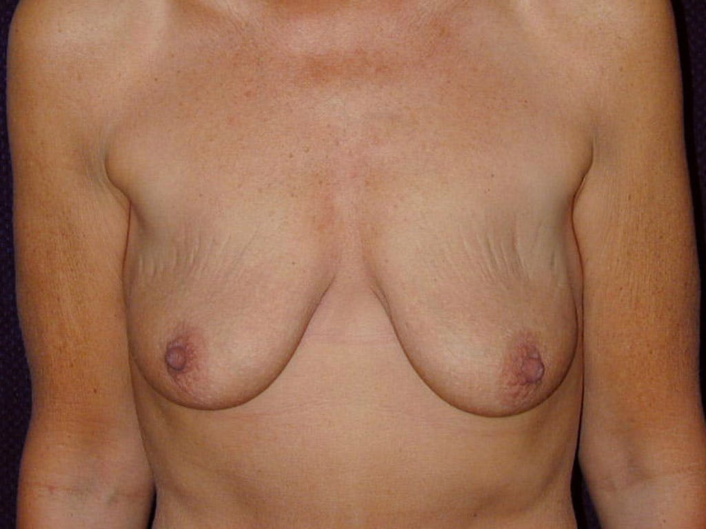 Vertical and Inverted T Breast Lift Gallery - Patient 39244199 - Image 1