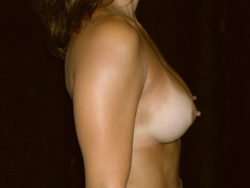 Breast Augmentation Gallery - Patient 39244198 - Image 4
