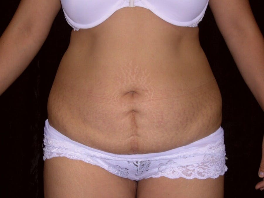 Tummy Tuck Gallery - Patient 39244335 - Image 1