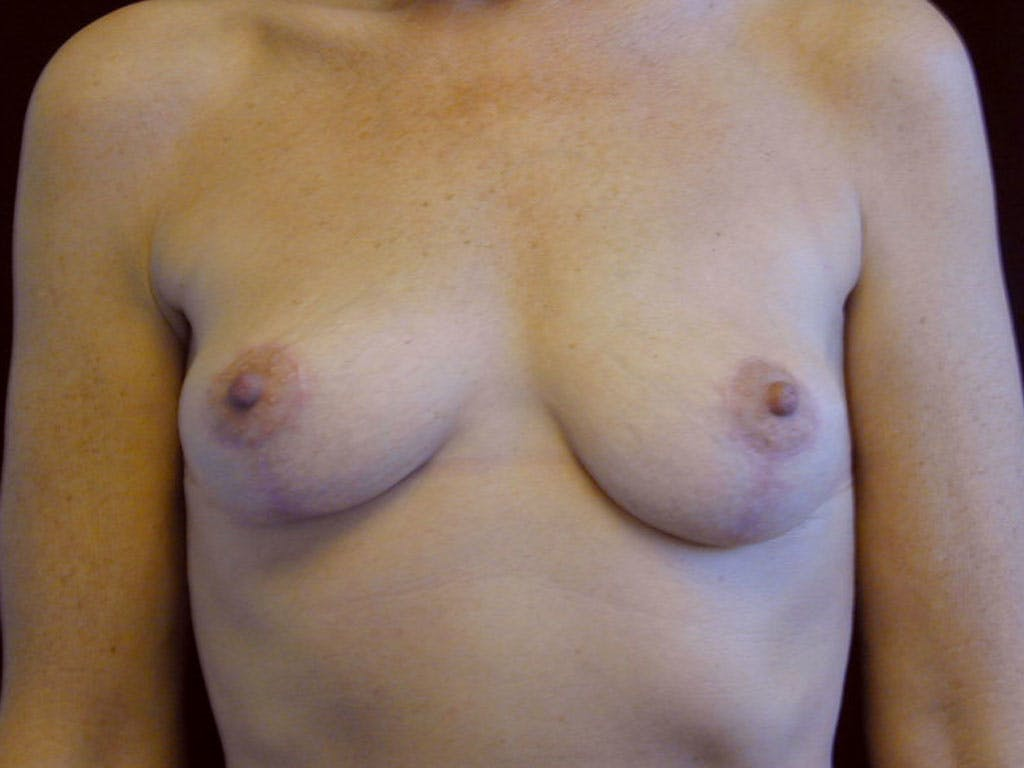 Vertical and Inverted T Breast Lift Gallery - Patient 39244199 - Image 2