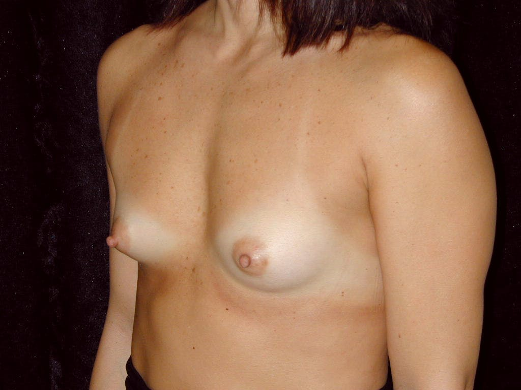 Breast Augmentation Gallery - Patient 39244198 - Image 5