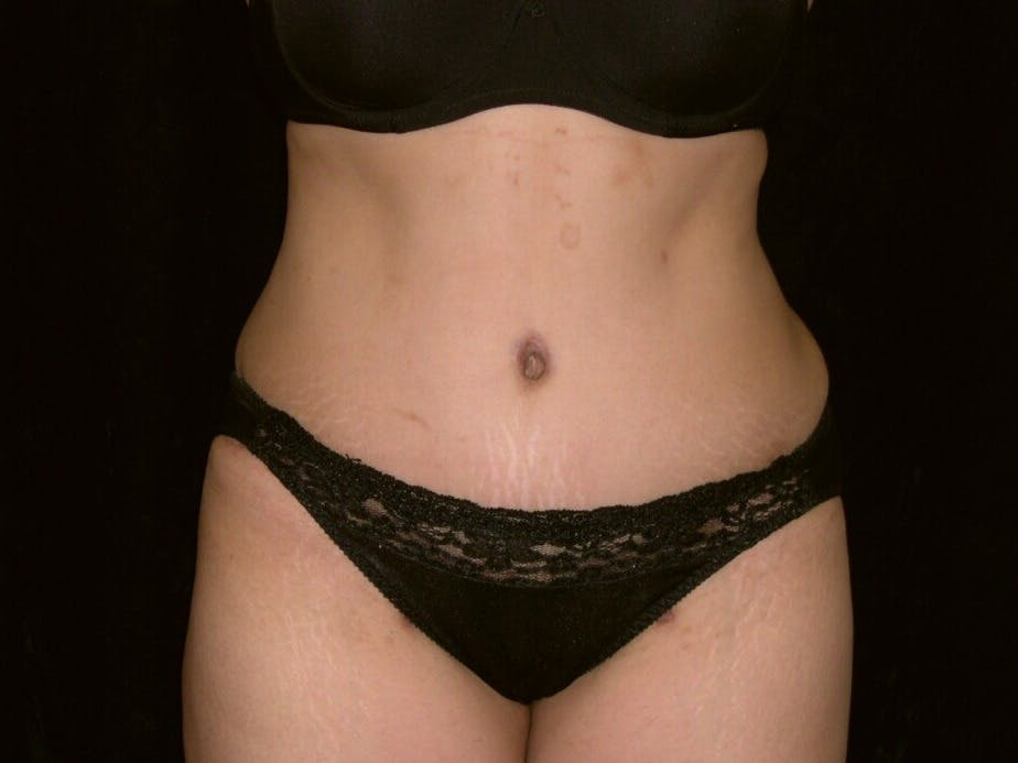 Tummy Tuck Gallery - Patient 39244335 - Image 2